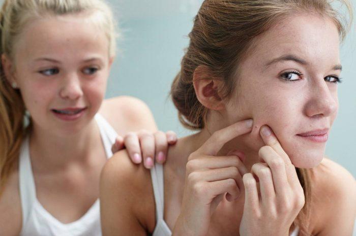 6-maneras-deshacerte-acné