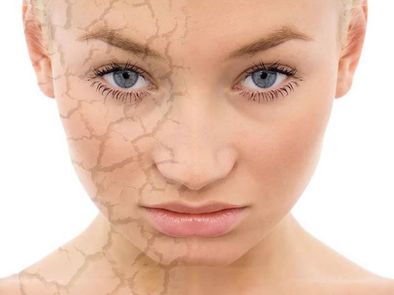 Cara de mujer con grietas en la piel
