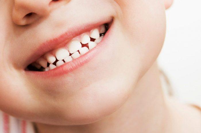 Niño sonriendo con dientes de leche