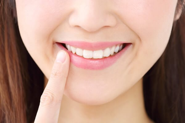 Chica con dientes sin caries