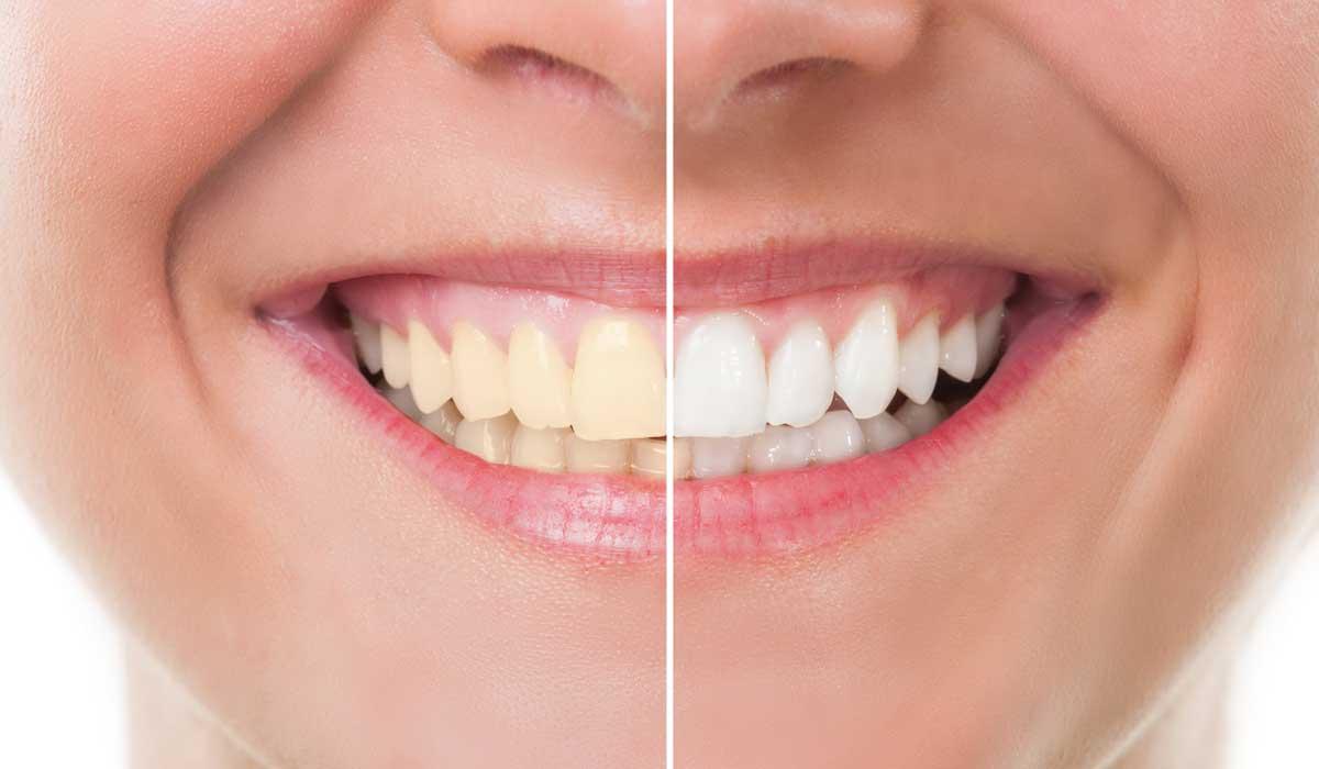 Cómo mantener un blanqueamiento dental