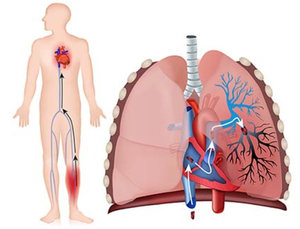 conoce que es la embolia pulmonar
