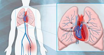 que es la embolia pulmonar