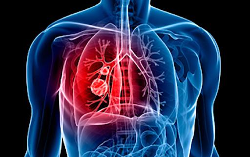 consecuencias de la hipertensión pulmonar