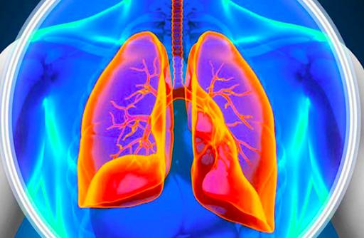 que es la hipertensión pulmonar